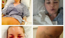 Christy Mack's Injuries